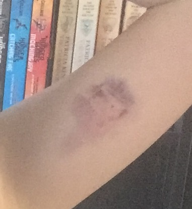 Implanon bruise 2.jpg